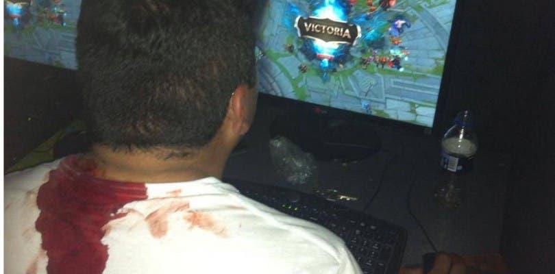 Un joven es acuchillado durante su partida de League of Legends pero prefiere terminarla por subir de rango
